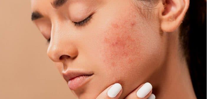 Quels sont les remèdes efficaces contre l'acné ?
